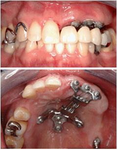 歯槽骨延長術
