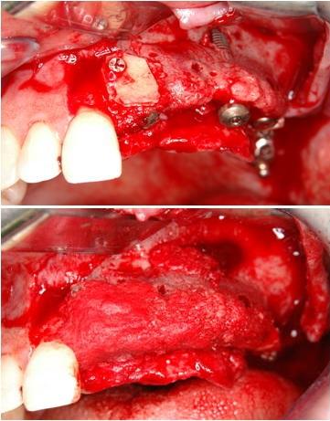 インプラント埋入と自家骨移植
